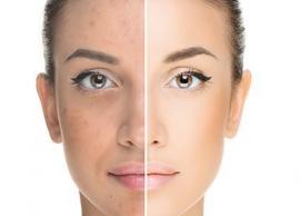 acne free