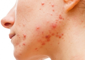 now that is acne